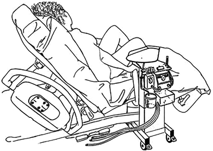 850x602 Figure 3 Drawing Of The Trolley's Position For Normal Delivery