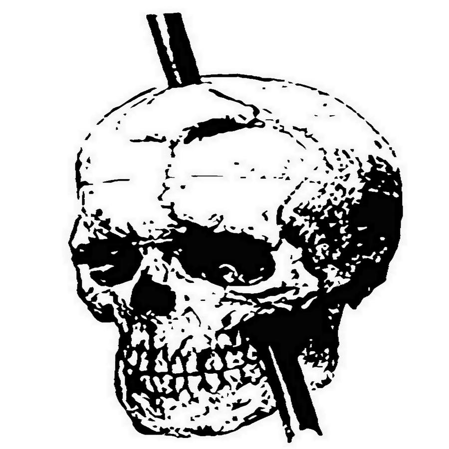 900x900 The Skull Of Phineas Gage Vintage Illustration Vector Painting By