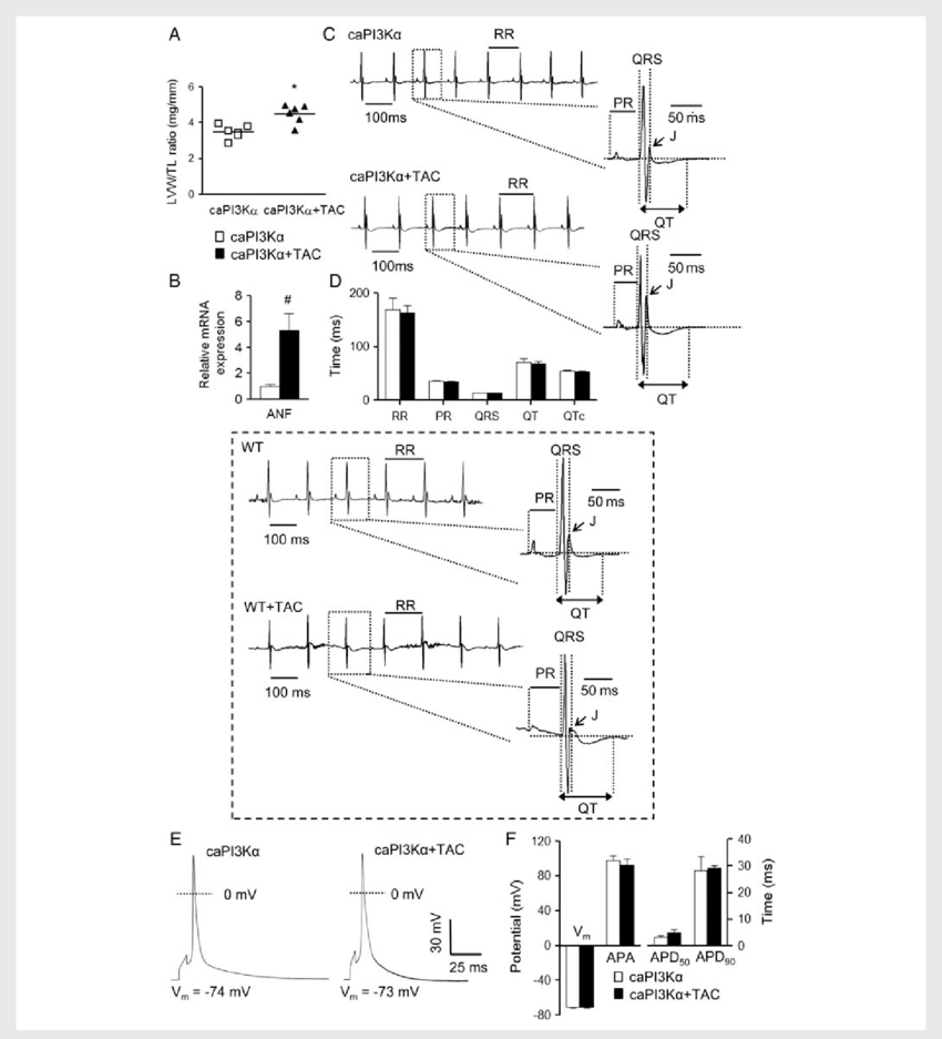 850x937 Increased Pi3ka Signalling Prevents Ecg And Action Potential