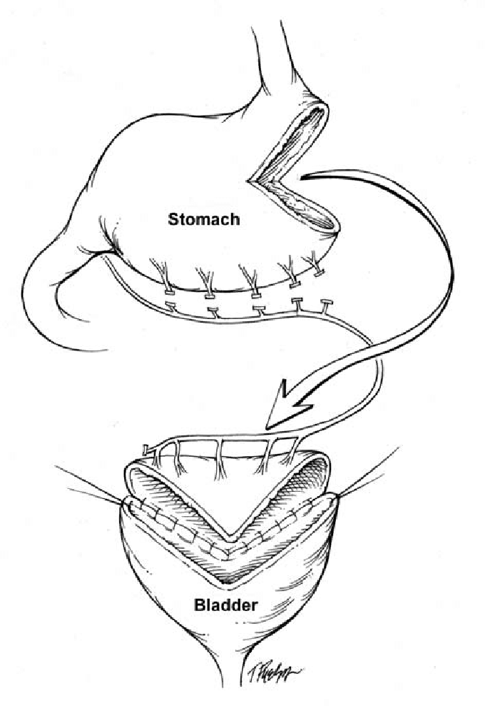 680x989 The Wedge Shaped Gastric Flap Is Brought With Its Blood Supply