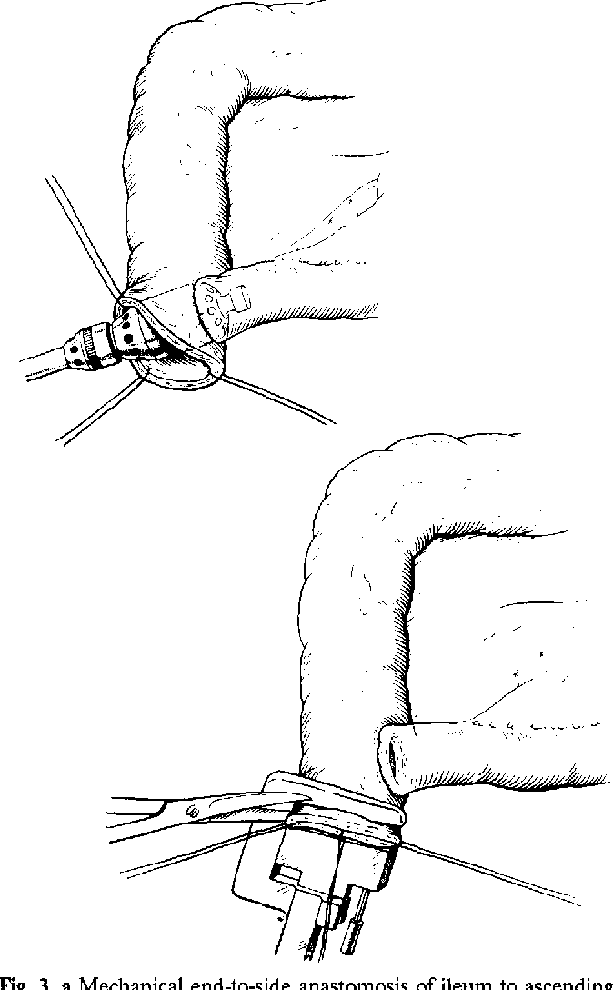 674x1088 Figure 3 From The Mainz Pouch (Mixed Augmentation Ileum