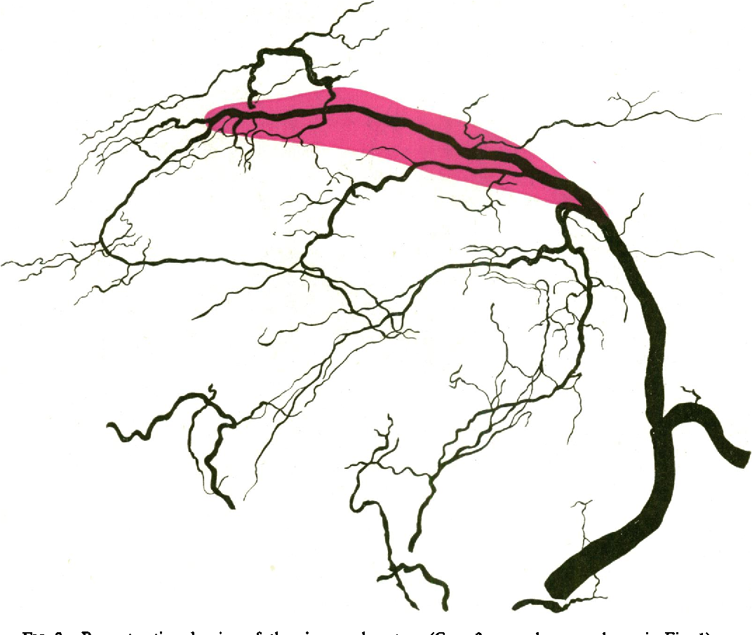 1072x906 Figure 2 From Arterial Blood Supply Of The Human Sinus Node