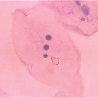 320x320 Mean Nuclear Diameter (Nd) And Nucleus Cytoplasm (Nc) Ratio