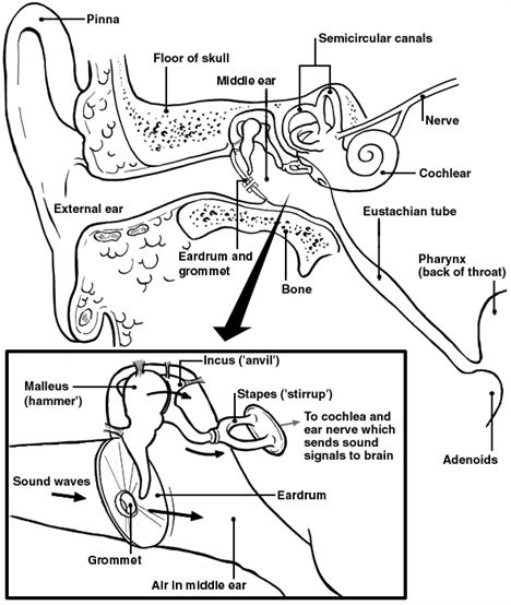 468x554 Patient Advice Sheet On Grommet Insertion (Part 1 Of 2) Medtalk