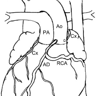 320x320 This Drawing Of The External Cardiac Anatomy Shows Dextrocardia