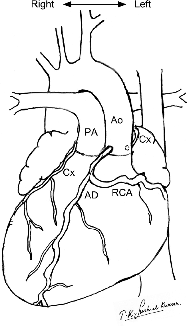 662x1145 This Drawing Of The External Cardiac Anatomy Shows Dextrocardia