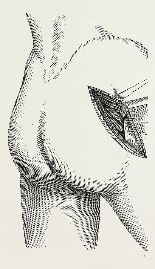 520x900 Excision Of The Hip By An External Incision Drawing By Litz Collection