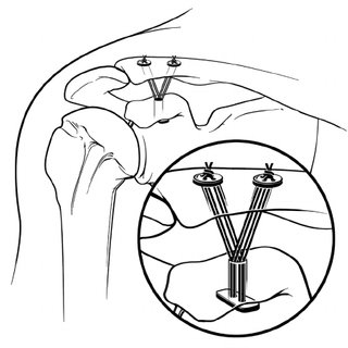 320x320 Line Drawing Of Native Shoulder Joints With Intact