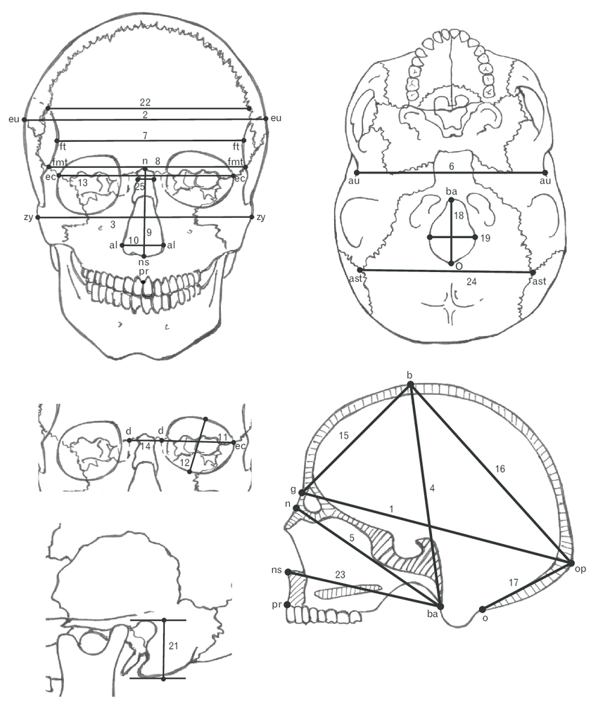 850x1006 Drawing Of Skull Measurements Measured In This Study. Written