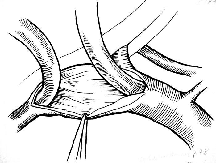 700x527 Andreea Margineanu Biomedical Illustration And Animation Tissue