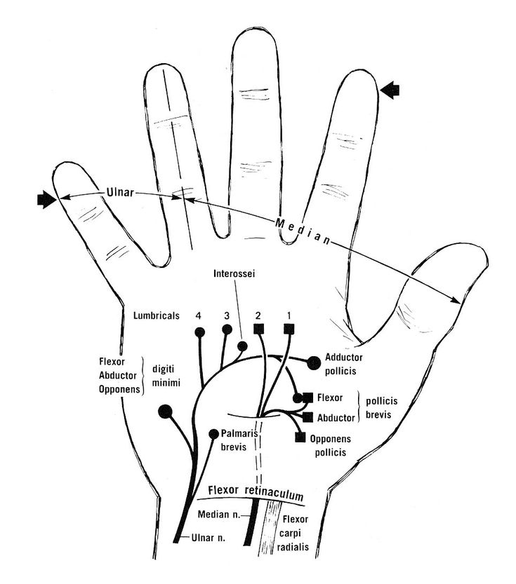 735x833 372 Best Upper Limb Images On Physical Therapy