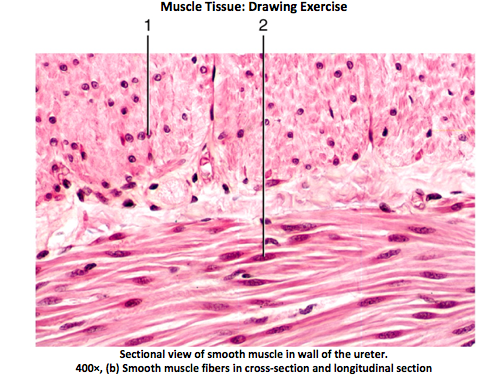 479x379 Solved Muscle Tissue Drawing Exercise Sectional View