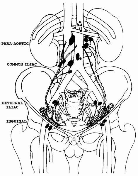471x600 Pathology Outlines
