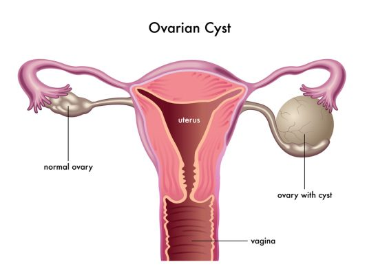 533x400 What Are The Symptoms Of Ovarian Cysts Healthstatus
