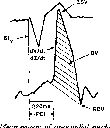 362x424 Figure 4 From The Effect Of Rate Modulation Single Rate Rate