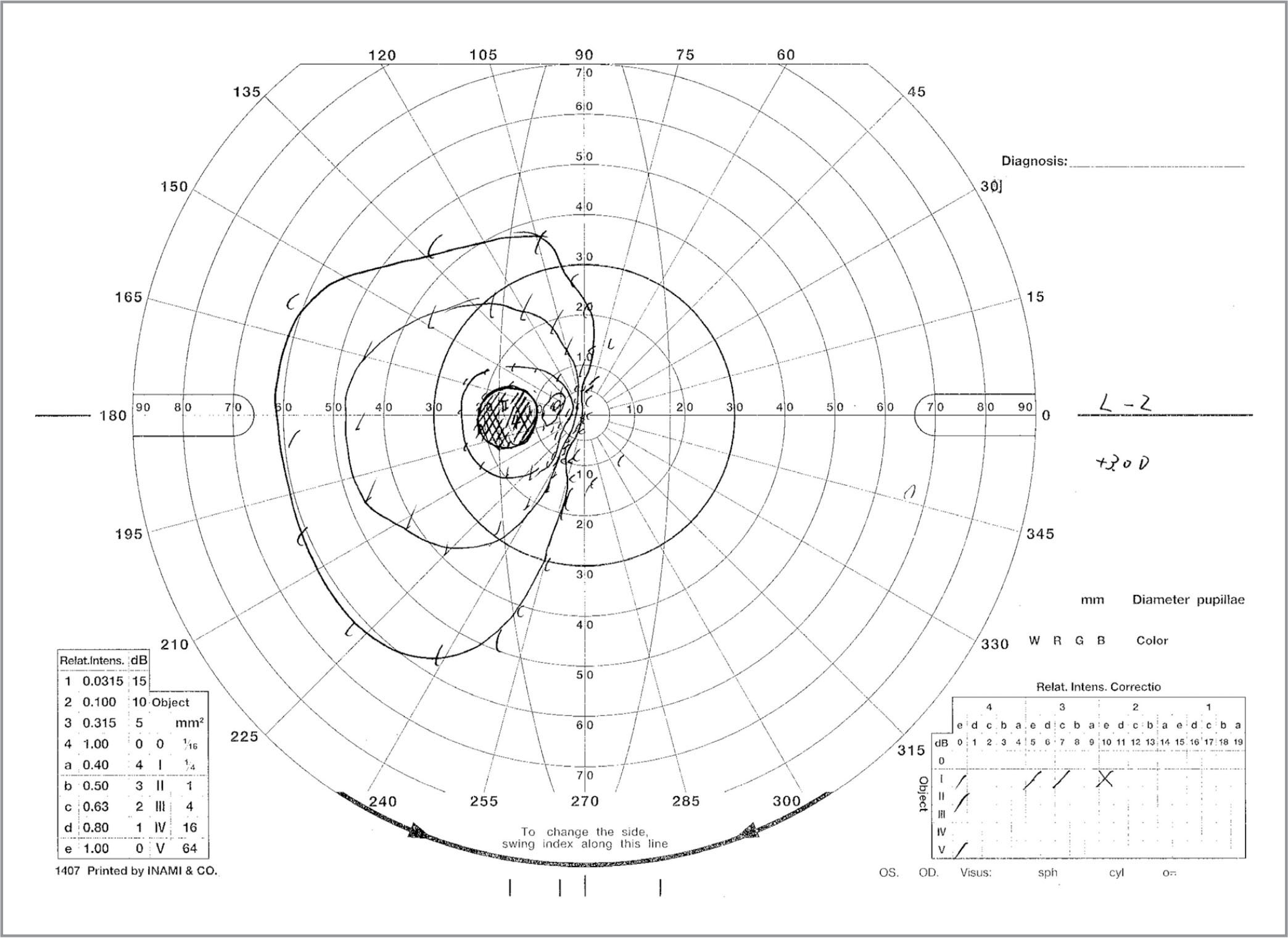 Retinal Drawing at GetDrawings com | Free for personal use Retinal