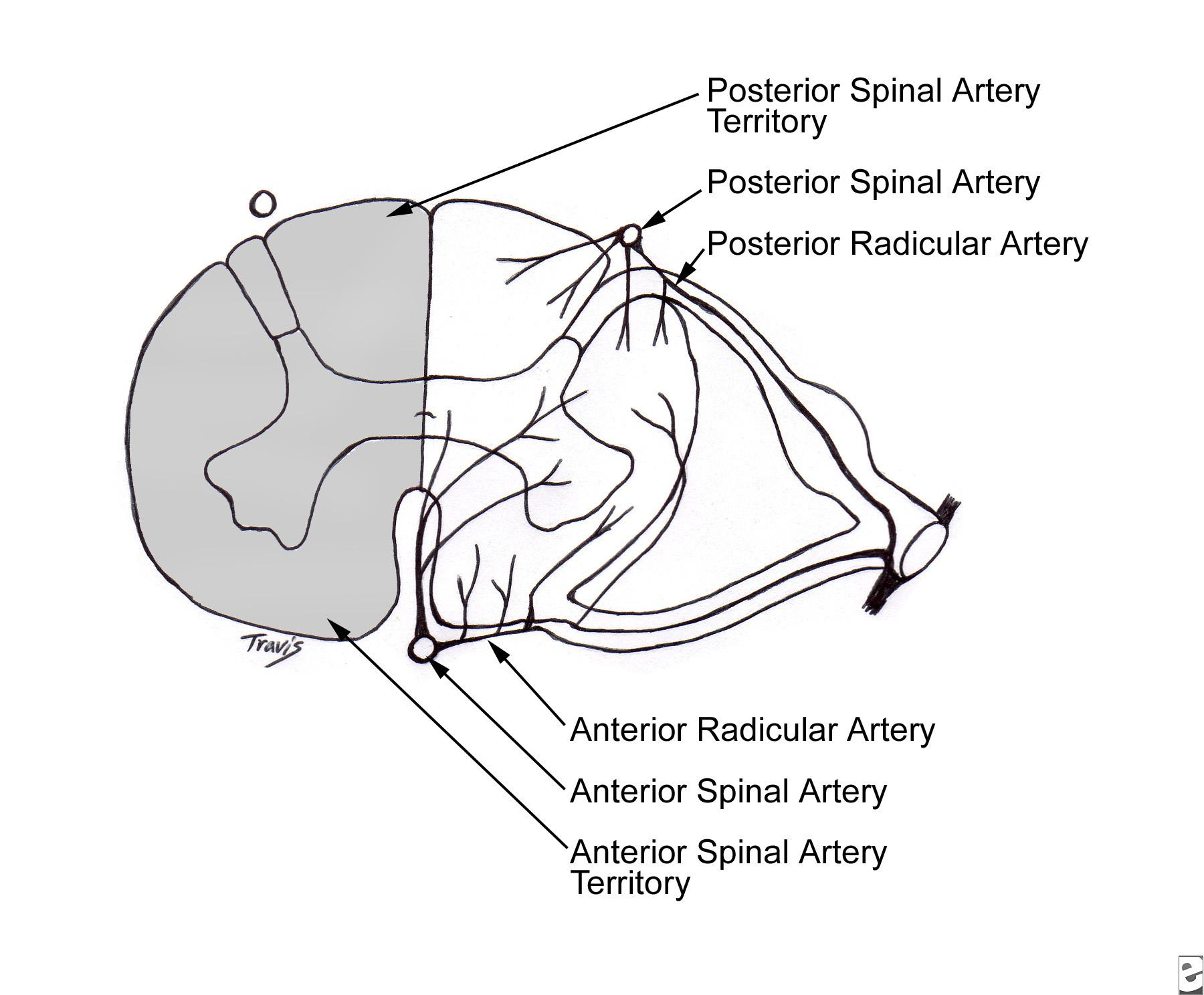 1800x1488 Spinal Cord Infarction