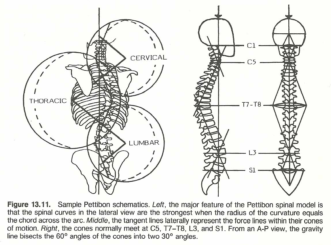 1149x852 Chapter 13 Scoliosis