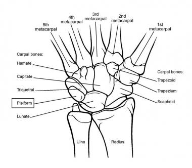 380x332 Arthritis Of The Wrist And Hand Glenelg Orthopaedics