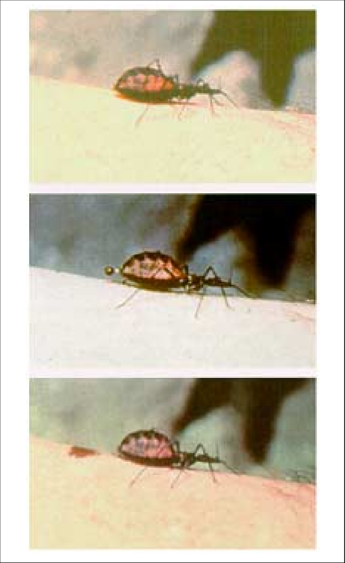 674x1101 A Triatomine Bug Vector Of Chagas Disease In The Process Of