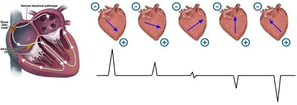 612x217 Cardiac Axis Deviation Blogging For Your Noggin Nursing