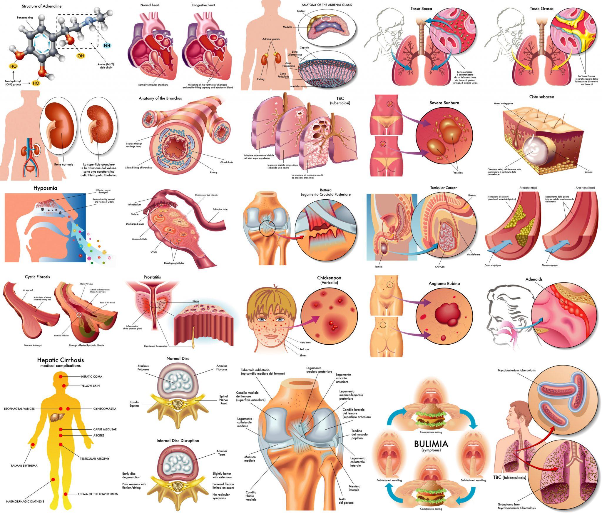 2048x1748 Illustrations Of Human Anatomy, Disease, Medical Topics Vector