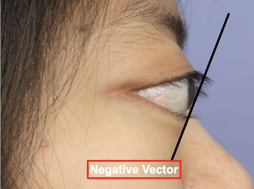 853x635 Eyelid Revision Surgery Eyelid Retraction Beverly Hills