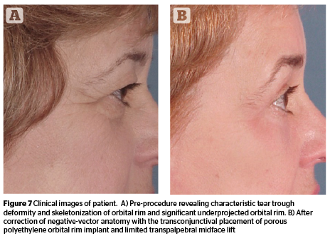 464x338 The Midface Filling, Lifting, Or Blepharoplasty Prime Journal