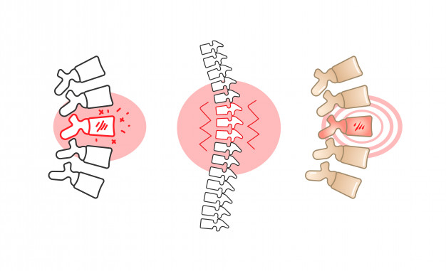 626x381 Back Pain Vector Illustration With Red Circle. Vector Premium