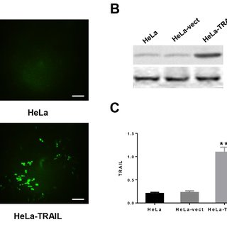 320x320 Trail Protein Expression In Hela Cells Transfected With Pvector Or