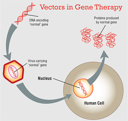 450x424 Gene Therapy The New Frontier For Inherited Retinal Disease