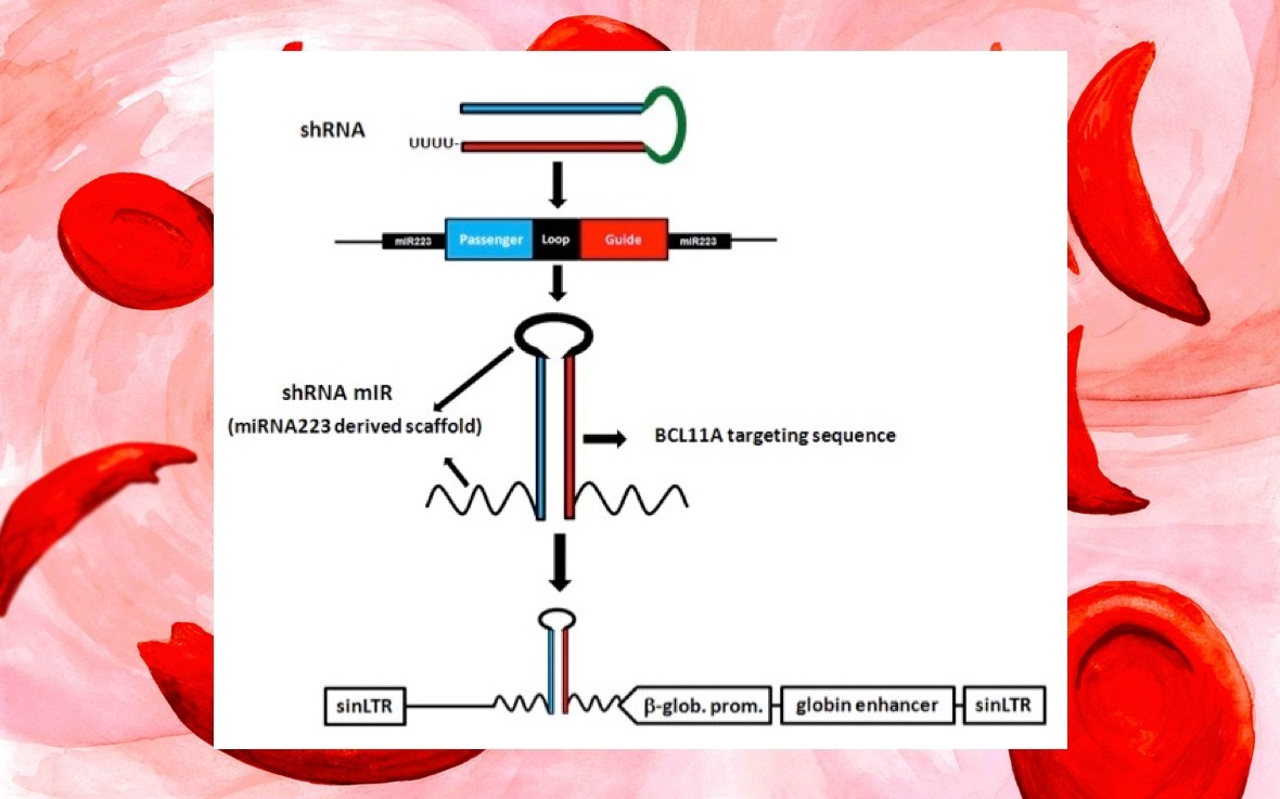 1180x737 Sickle Cell Gene Therapy To Boost Fetal Hemoglobin