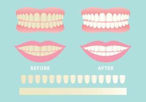 286x200 Teeth Free Vector Art