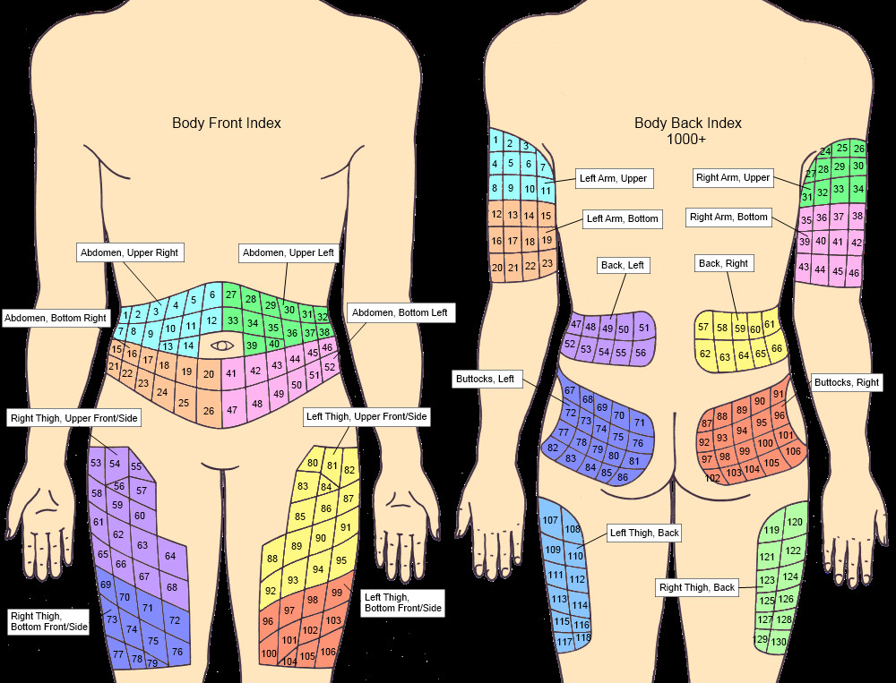 1000x763 Insulin Injection Sites Diagram Hyperglycemia Cartoons