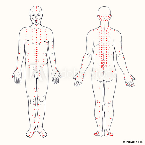 500x500 Body Set (Front And Back) Acupuncture Scheme With Red Points, Hand
